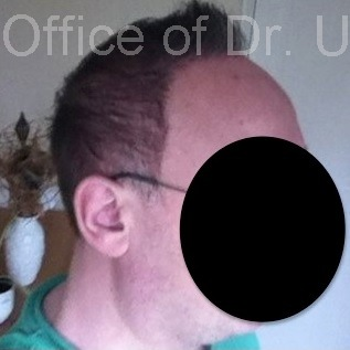 View Showing Side of Patient's Head| Severe Baldness Reversed