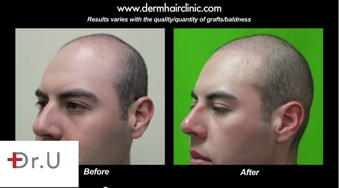 Three Quarters View of Patient's Results|Young Male Patient 2000 FUE Grafts