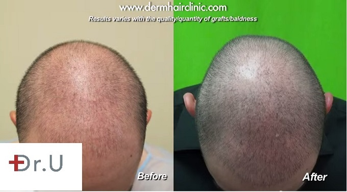 role of body hair transplant in diffused alopecia