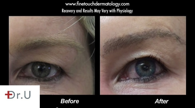 Eyebrow transplant with 350 Grafts Before and After Surgery