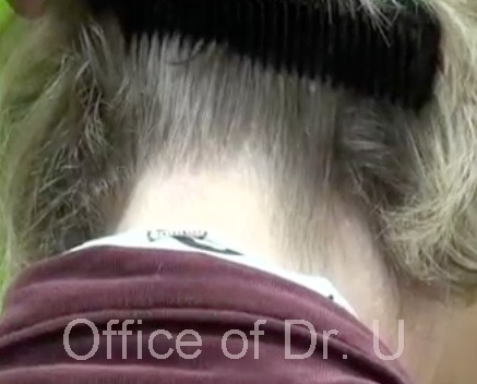 Nape Hair Donor Area  Healing After Advanced FUE Extractions