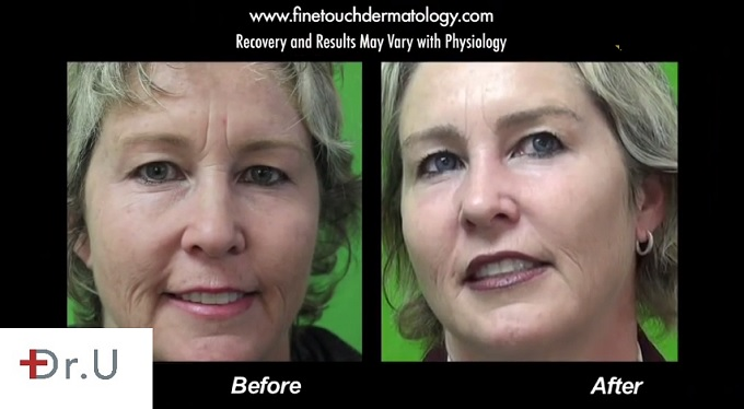 This patient's eyebrow transplant procedure shows that shaping eyebrows does not have to be a daily or even weekly chore. She approached Dr. U for an eyebrow transplant inspired by Brooke Shields, whom she has always admired, and was very pleased with the result.