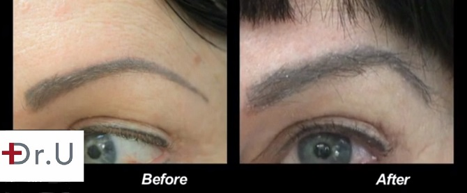 A close up view of patient's eyebrows before and after her UGraft FUE hair transplant for eyebrow restoration
