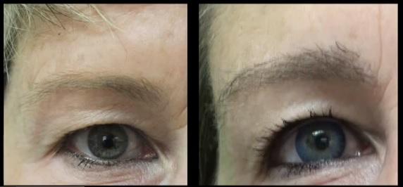 Dr Umar's Eyebrow Restoration Surgery on Good Morning America