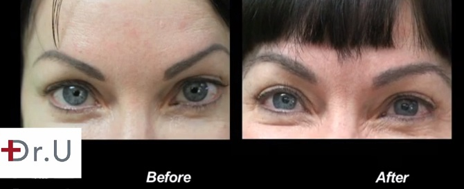 eyebrow hair transplant after surgery care