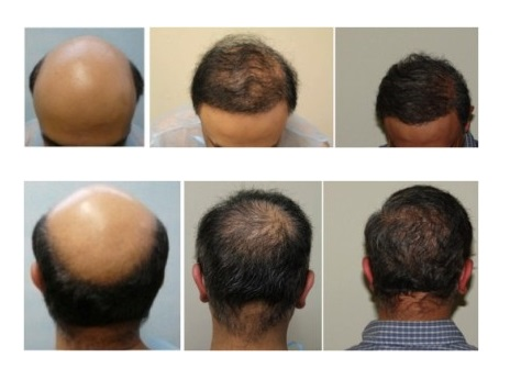 Examples of FUE Hair Transplant
