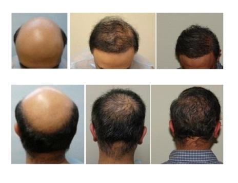 Beard Hair Transplant|Norwood 7 Case|12,000 Grafts