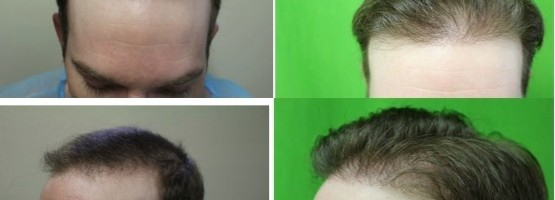 New and Improved Hairline | FUE Restoration