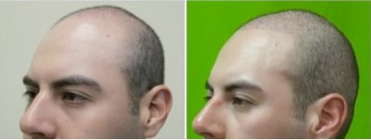 Best Treatment for male Pattern Baldness