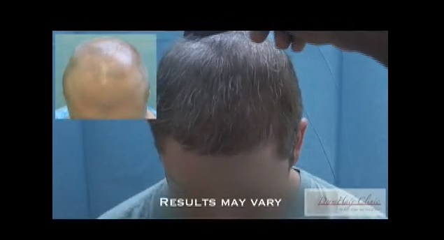 FUE-hair-restoration-9930