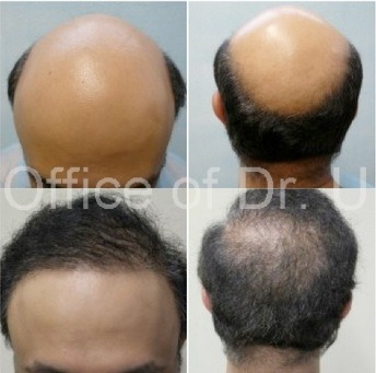 Before and After First BHT Surgery 8000 grafts | Front and Back View of Patient's Results