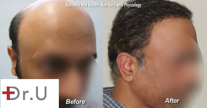 Three Quarters View|Body Hair Transplant Patient before and after 12000 grafts with the UGraft FUE