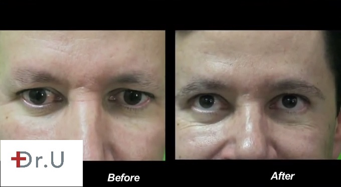 Male Patient| Before & After leg eyebrow restoration