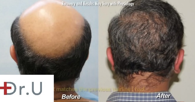 Reversing Crown Baldness| Body Hair Transplant - BHT, Patient before and after 12000 grafts with the UGraft FUE