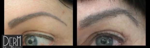 eyebrow hair transplant arches