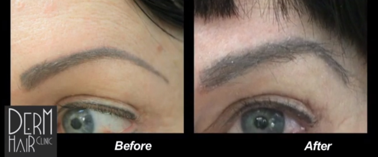 eyebrow hair transplant results time frame, expectations