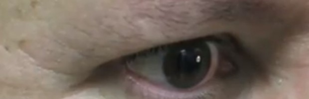 Male Patient Before His Eyebrow Hair Transplant