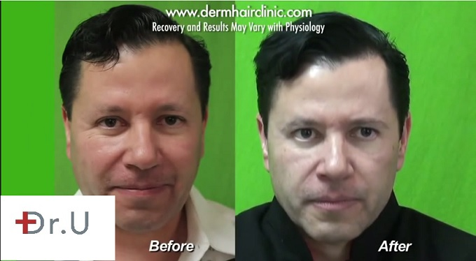 Patient's Appearance With New Eyebrows| Leg Hair Grafts