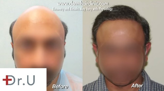 Severe Baldness Reversal With 12,000 Grafts by UGraft BHT outcomes