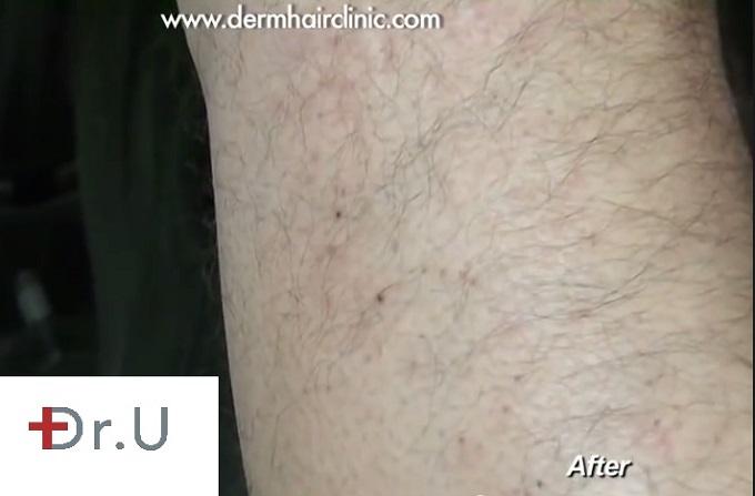 Leg donor area| Healing after leg hair UGraft FUE for eyebrow transplantation surgery - eyebrow restoration results