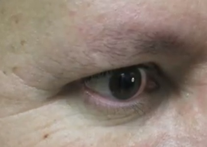 Male Patient With Sparse Eyebrows| Before Leg hair Eyebrow Restoration Results