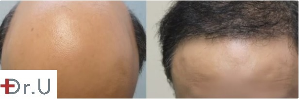 Severe Baldness Reversal With 8000 Grafts by UGraft BHT - results