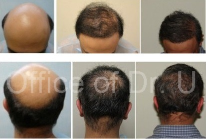 Patient After First and Second BHT Operations| 12000 Grafts of Body and Head Hair