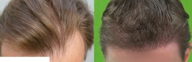 Hairline Restoration| Follicular Unit Extraction