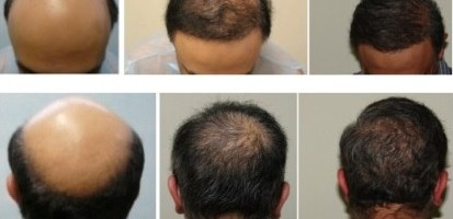 Two BHT Surgeries Reverse Norwood 7 Baldness