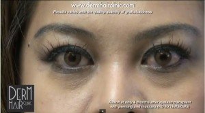 Front view of patient after her eyelash hair transplant surgery