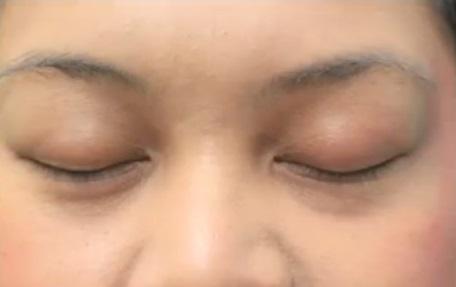 eyelash-hair-transplant-085611