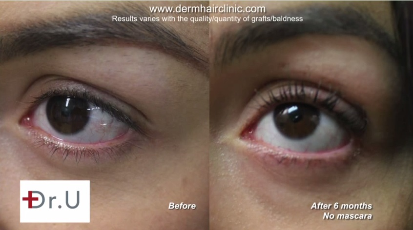 UGraft Eyelash Transplant Results With Leg Hair Grafts in Los Angeles with no mascara