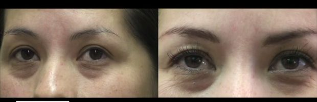 Longer Eyelashes| Eyelash Transplant Surgery Results - With Mascara