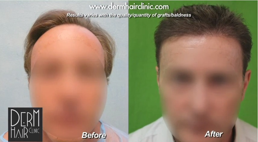 FUE hair restoration - before and after