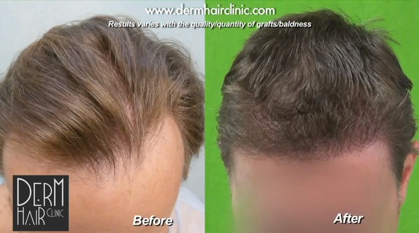 Follicular Unit Extraction Los Angeles