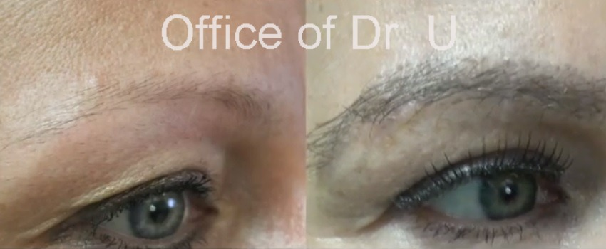 before and after eyebrow hair transplant using 400 grafts by UGraft