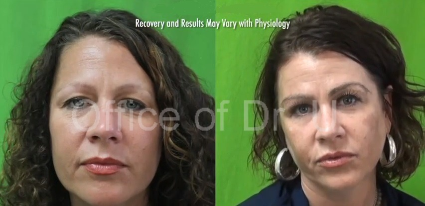 Eyebrow Transplant Patient  Satisfied With Her Results