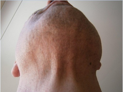 body-hair-transplant-0411.jpg