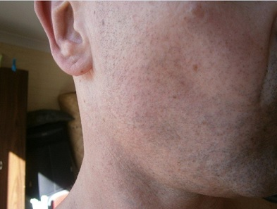 body-hair-transplant-098.jpg