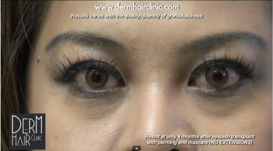 eye-lash-hair-transplant-06799