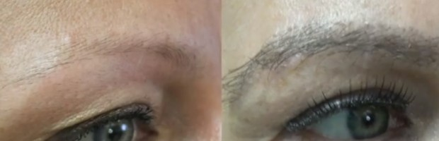 Fuller, Thicker Eyebrows Through Transplant Surgery