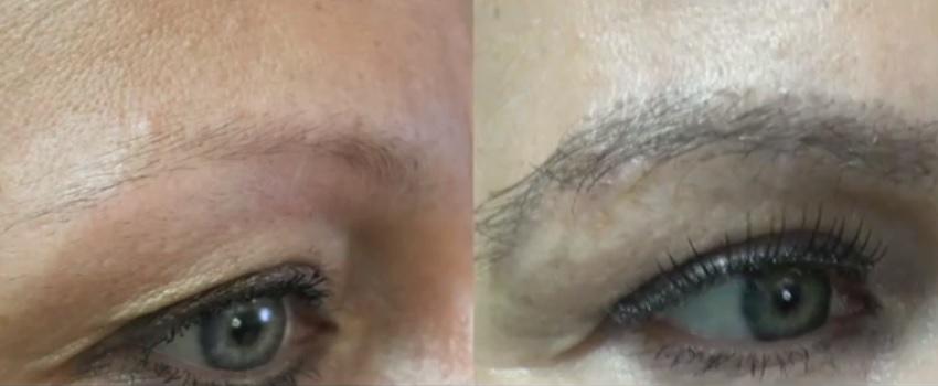 Fuller, Thicker Eyebrows Through Transplant Surgery