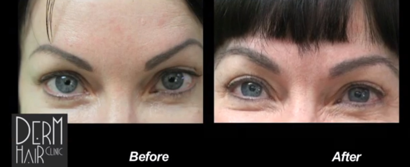 Los Angeles UGraft eyebrow hair transplant achieves great results after failed tattoos