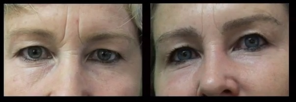 Eyebrow Transplant for New Shape and Better Density