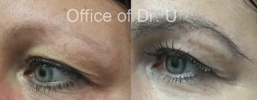 Close Up View of eyebrow hair transplant Results  Improved Definition