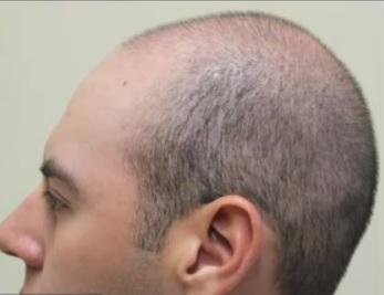hair-restoration-0987