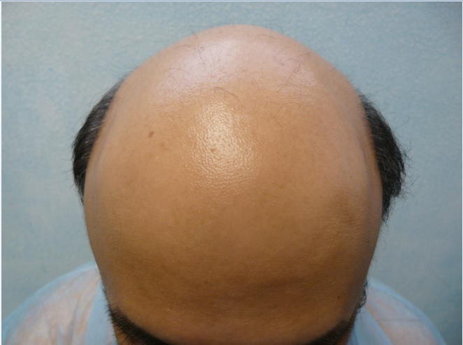 Gravity Theory of Hair Loss and Baldness