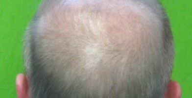 Hair loss info|Male Pattern Baldness