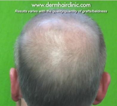 Hair loss info|Male Pattern Baldness
