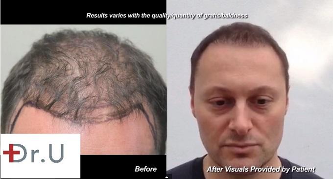 Hairline Restoration|1500 FUE Grafts